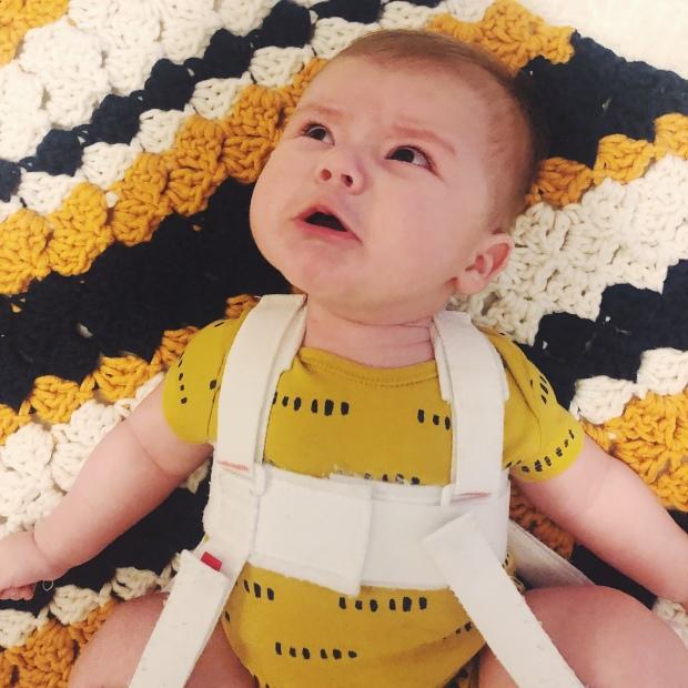 Baby crying Pavlik Harness
