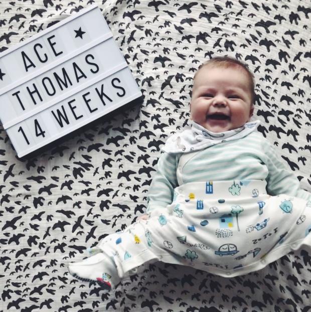 Baby hip dysplasia clothing