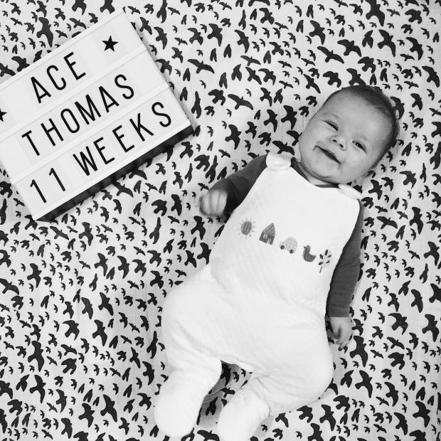 Baby boy milestone DDH double nappy